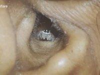 Kadının Kulağında Gezintiye Çıkan Örümcek