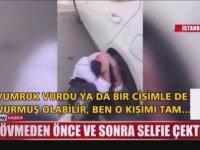 Dövdükleri Gençle Selfie Çekinen Çete