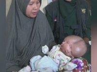 Çift Başlı Bebek - Endonezya