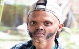 Diliyle Alnını Yalayan Nepalli