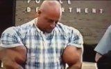 Vücut Geliştirme Uğruna Kolu Patlayan Adam