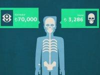 Organlarımız Kaç Lira Ediyor?