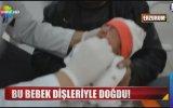 Erzurum'da Dişleriyle Doğan Bebek