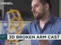 Tıbbi Alçılarda 3D dönemi
