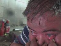 Burnundan Çektiğini Gözünden Fışkırtan Adam - İzmir