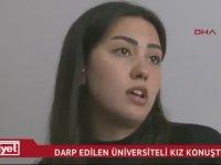 Şort Giydiği İçin Saldırıya Uğrayan Asena Melisa Sağlam