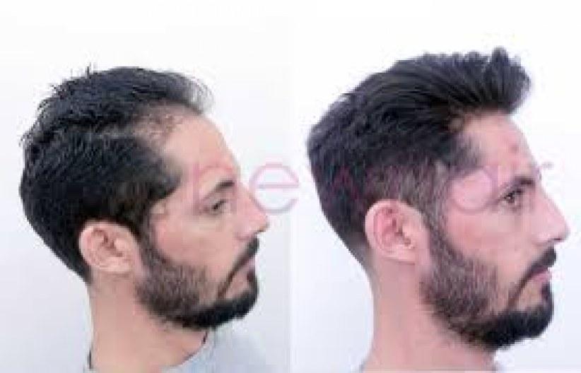 Protez Saç Modelleri