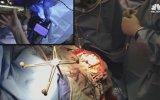 Beyin Ameliyatı Olurken Saksafon Çalan Müzik Öğretmeni