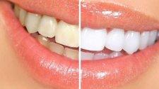 Evde Anında 2 Ton Diş Beyazlatma