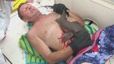 Köpek Balığı Tarafından Isırılan Adamın Kurtarılması