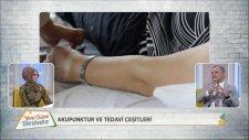 Yeni Güne Merhaba 1061.Bölüm - Akupunktur