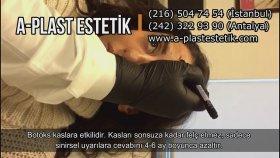 Botoks Botox Uygulaması Video İzle | Antalya İstanbul