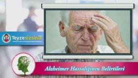 Alzheimer Hastalığının Bazı Belirtileri