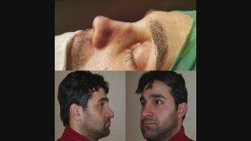 Mustafa Ali Yanık Burunda Şekil Bozukluğu Şikayet İle Gelen Hastalar ve Sonuçlarımız