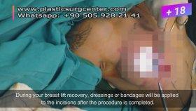 Breast Lıft Surgery In Turkey | Istanbul And Antalya