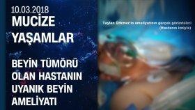 Beyin Tümörü Olan Taylan Ürkmez'in Uyanık Beyin Ameliyatı - Mucize Yaşamlar 10.03.2018