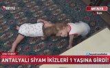 Antalya'da Kafaları Birbirine Yapışık Siyam İkizleri