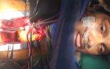 Hindistan'da Açık Kalp Ameliyatı 18