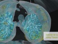 Corona Virüs Bulunan Akciğerin 3D Görüntüsü
