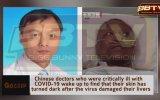 Corona Virüse Yakalanan Doktorların Ten Renginin Değişmesi