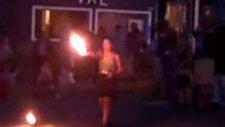 Ateşle Show Yapan Genç Kızın Başına Gelen Kaza
