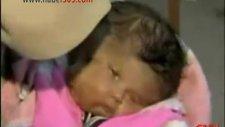 hindistanda doğan iki yüzlü bebek