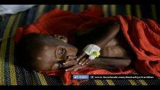 afrika somalide açlık  somaliye yardım  diyanet işleri başkanlığı somali yardı