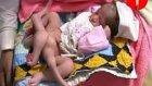 Altı Bacaklı Bebek Doğdu!