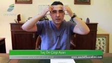 Alın Bölgesine Saç Ekimi  Op Dr Ali Mezdeği