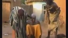 Afrika'da Migren Tedavisi! Rekor Kıran Video!