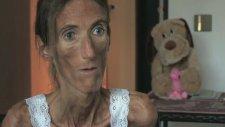 Dünyanın En Zayıf Kadını - Valeria Levitina