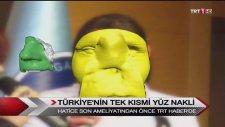 Turkiye'nin Tek Kismi Yüz Nakli