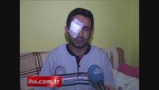 Taksim'de gözünü kaybeden eylemci yaşadıklarını anlattı!