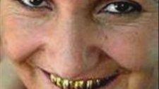 Kaynanamın Altın Dişleri