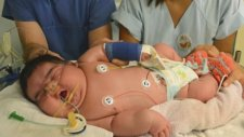 6.5 Kg Doğan Bebek
