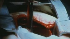 Faces of Death (1978) (Trailer)