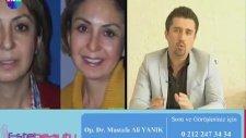 Op. Dr Mustafa Ali Yanık 35-40 Dk'da İplerle Yapılan Gençleştirme İşlemi Anlatıyor
