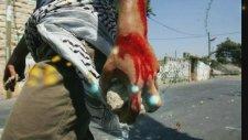 Halaoğlu Şair - Amed'te Vurulmuşum Nasıl Olayım