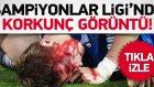 Yıldız Futbolcu Kanlar İçinde Yerde Kaldı!