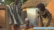 Afrika'da İlginç Baş Ağrısı Tedavisi