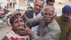 Hindistan'da Diş Beyazlatma