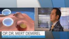 Op. Dr. Mert Demirel - Göğüs Dikleştirme Ameliyatı Nasıl Yapılır?