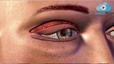 Op. Dr. Mert Demirel - Göz Kapağı Ameliyatı Nasıl Yapılır?