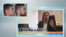 Op. Dr. Mustafa Ali Yanık - Revizyon Burun Ameliyatları Zor Mudur