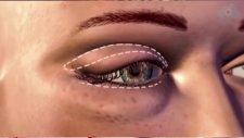 Op. Dr. Diren Çelik - Göz Kapağı Ameliyatı Nasıl Yapılır?