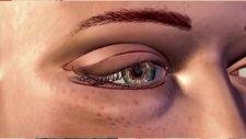 Göz Kapağı Ameliyatı Nedir?