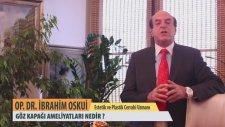 Göz Kapağı Ameliyatı Nedir? - Op. Dr. İbrahim Oskui