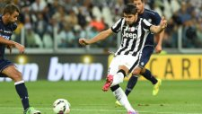 Juventus'lu Yıldız Fena Iskaladı