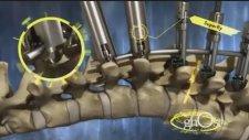 Animasyon 3d Omurga Ameliyatı