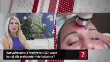 Radyofrekanslı Fraksiyonel CO2 Lazer hangi cilt problemlerinde kullanılır? Dr.Nüket Eroğlu